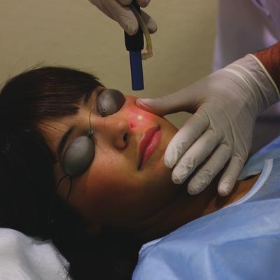 Tratamiento de fototerapia.